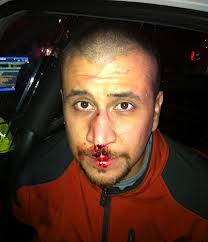 Photo of George Zimmerman taken at the scene